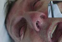 Nesnesitelná bolest umírajícího: Drsné video eutanazie vyděsilo i ty nejotrlejší