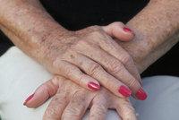 Pigmentové skvrny dovedou potrápit: Nejlepší babské rady, jak si s nimi poradit!