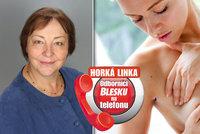 Téma Horké linky Blesku - rakovina: Odborníci odpovídají na vaše dotazy právě teď