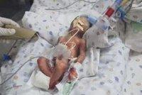Předčasně narozeného chlapečka prohlásili za mrtvého: Cestou na hřbitov ožil