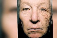 Slunce zdeformovalo řidiči náklaďáku levou stranu tváře: Tohle mu udělaly paprsky během 28 let
