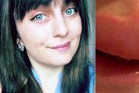 Dívce nechutně otekl ret: Myslela si, že má alergii, trpí však vzácnou chorobou
