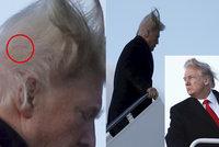 Tajemství Trumpovy plešky odhalil vítr: Jizva a náplast po transplantaci štěpů, tvrdí šéf americké kliniky