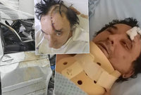 Frontman kapely Plexis o děsivé nehodě: Skalpovaná půlka hlavy, krok od smrti!