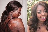 Jako batole utrpěla popáleniny na 70 % těla. Znetvořenou ženu (23) šikanovali, ale nedala se