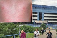 Zaměstnanec motolské nemocnice onemocněl spalničkami: Kvůli nákaze uzavřeli urgentní příjem