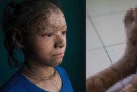 Hadí dívka (13) se vzácnou nemocí krvácí na slunci. Domov se pro ni 76d376e3b4