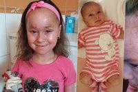 """Nelinka (7) zarůstá kůží, hrozí jí kolaps a tělo jí funguje jako """"papiňák"""""""