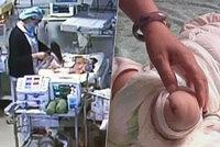 Sestřička spálila v porodnici miminku nohu, museli ji amputovat