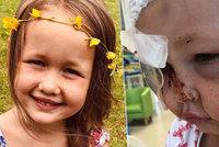 Pes brutálně zaútočil na holčičku (4): Rozdrtil jí lebku!