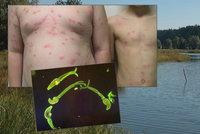 Děti dostaly po koupání na Karlovarsku ošklivou vyrážku: Nakazily se parazitem ze šneků!
