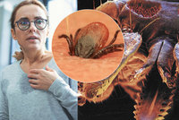 Klíště šíří anaplazmózu. Nakazilo se už přes 50 Čechů, nemoc zvětšuje játra