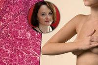 Rakovinu prsu můžete dostat i ze stresu, varuje lékařka. Jaká je šance na vyléčení?