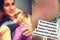 Dcerka (19 měs.) Lucie Křížkové: Ošklivá reakce na očkování!