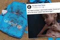Holčička Amal (†7) zemřela v Jemenu hlady. Její fotka šokovala svět