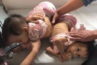 Úspěch doktorů: Oddělili siamská dvojčátka srostlá játry. Matka pláče štěstím