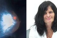 Pacientka s rakovinou prsu se dočkala! Pojišťovna obrátila, drahý lék proplatí!