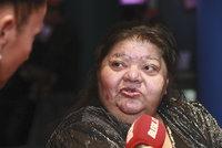 Kolaps Věry Bílé (64): Zpěvačku odvezla záchranka! Je ve vážném stavu!