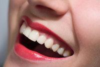 """Třetí zuby vyrostou přímo v čelisti. """"Hrozí rakovina,"""" varuje český lékař"""