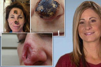 Homeopatika ženě »rozpustila« nos! Lékaři jí museli udělat úplně nový