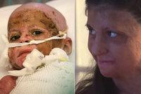 Smutný osud popálené Natálky: I 10 let po útoku se bojí usnout! Nejhlubší jizvy má na duši