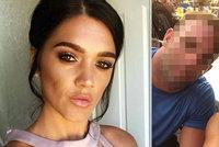 Matku tří dětí zabila tuková sraženina. Tu jí způsobila plastická operace zadku
