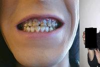 Student pil šest energeťáků za den: Sladké pití mu doslova rozežralo zuby