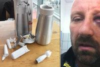 Vladimír Š. (45) z Pardubic varuje: Vybuchl mi v ruce šlehačkovač a rozdrtil mi lícní kost
