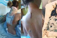 Anetě (15) po pádu v nemocnici odumírá ruka. Potřebuje operaci za 6 milionů