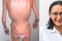 """Zabíjí nás kult """"zdravého těla""""? Anorexii propadají i výživoví poradci, varuje expertka"""