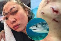 Naně se žralok zakousl do hlavy! Hororovou lekci potápění zázrakem přežila