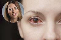 Lékařka varuje před rizikem očních alergií: Neléčený zánět vede k vážným komplikacím