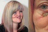 Mirce dali Češi miliony na novou tvář. Ke svému uzdravení udělala první krok
