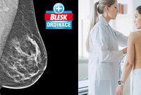 Hrozí vám rakovina prsu? Rozhodne náhoda, genetika je na vině jen u 10 % případů!
