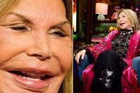 Fanoušci reality show v šoku! Zemřela milovnice zpackaných plastických operací (†84)