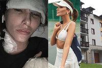 Šokující popis a první slova o pádu z balkonu: Modelka, která svědčila u soudu s fotbalisty, promluvila