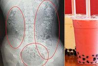 Dívku (14) trápily ukrutné bolesti břicha! V břiše jí našli 100 kuliček z bubble tea