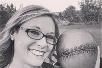 V těle měla 23 nádorů! Její manžel si na hlavu nechal vytetovat stejnou jizvu, jakou má ona