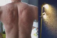 Pohroma v Chorvatsku! Roje komárů dělají ze života peklo
