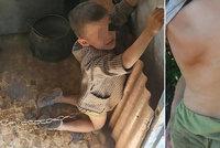 Chlapečka našli v domě přivázaného řetězem: Otec ho držel jako psa!