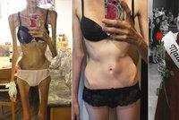 Jana porazila smrtící anorexii. Jiní takové štěstí nemají, říká lékařka