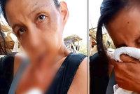 Ženě přirostl spodní ret k hrudníku: Chodí od města k městu a prosí o pomoc