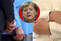 """""""Trpí Parkinsonem?"""" Třetí třes Merkelové rozvířil nové teorie o vážné nemoci"""