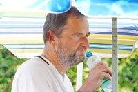 Robert Záruba se nevyléčitelnou nemoc kůže nestydí! Ukázal skvrny po celém těle