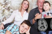 Daneček (5) žije s vzácnou vývojovou vadou: Jeho mozek nemá závity!