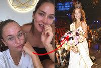 Úřadující Česká Miss Lea Šteflíčková odhalila pravdu: Ukázala pleť plnou boláků!