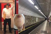 """""""Píchali mi injekce do zad."""" Jakl kvůli útoku v metru udeřil i na policii"""