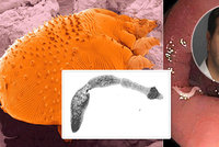 Odhalit nebezpečné parazity v našem těle? Někdy to může být problém, přiznává epidemiolog!