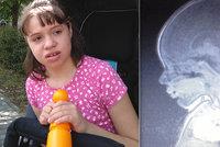 Vanda (11) má těžce poškozený mozek: Kdo nezažil tolik bolesti, neví, vzkazuje maminka