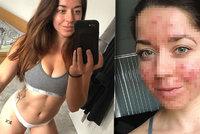 Sexy trenérku (25) fitness roky hyzdilo akné: Nový lék způsobil zázrak!